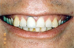 Teeth before whitening