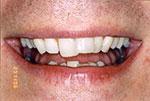 crooked teeth before