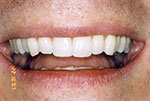 Even teeth after invisalign
