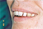 spaced teeth