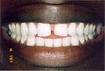 teeth with a gap