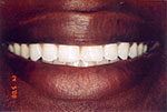 teeth with no gap after