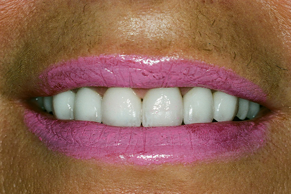 After Cosmetic Dentistry - Finsbury Dental Care