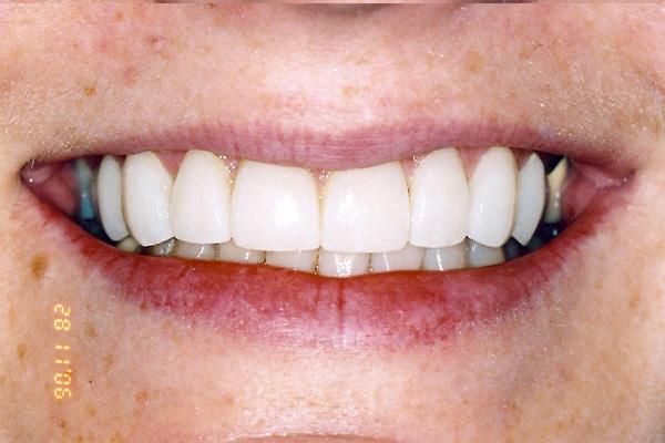 Post Cosmetic Dental Treatments - Finsbury Dental