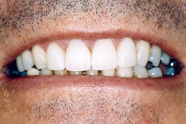After Cosmetic Dental Treatments - Finsbury Dental
