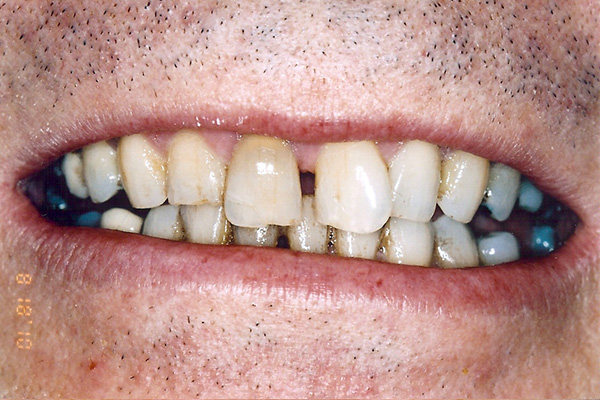Before Cosmetic Dental Treatment - Finsbury Dental