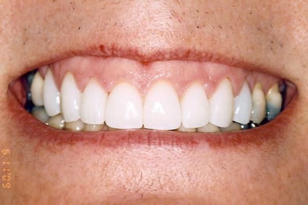After Dental Crowns - Finsbury Dental Care