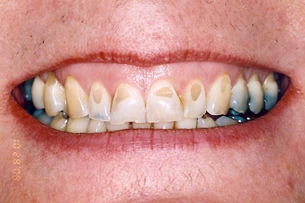 Before Dental Crowns - Finsbury Dental Care