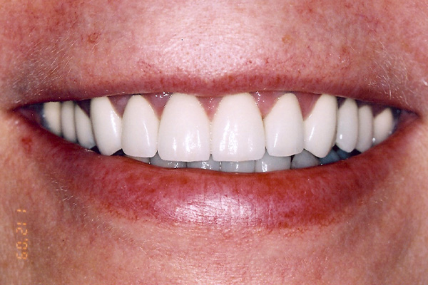 Result Of Dental Crown - Finsbury Dental