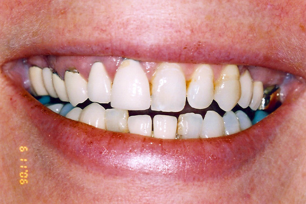 After Dental Crowns - Finsbury Dental