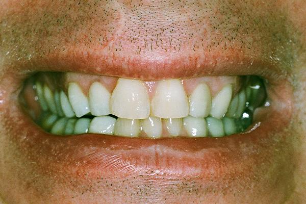 Dental Crowns - Finsbury Dental