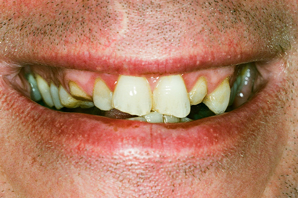 Before Dental Crowns - Finsbury Dental