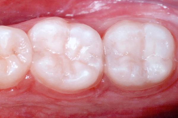 After Dental Fillings - Finsbury Dental Care