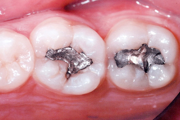 Before Our Dental Fillings - Finsbury Dental Care