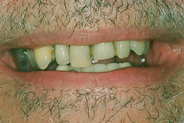 Before Dental Implants - Finsbury Dental Care