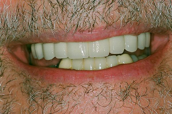After Dental Implants - Finsbury Dental Care
