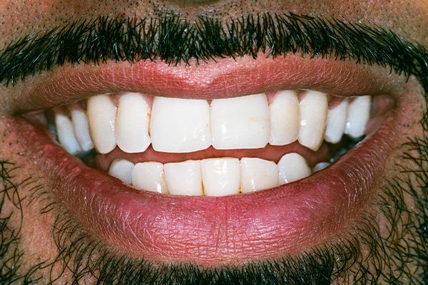 Invisalign - Finsbury Dental