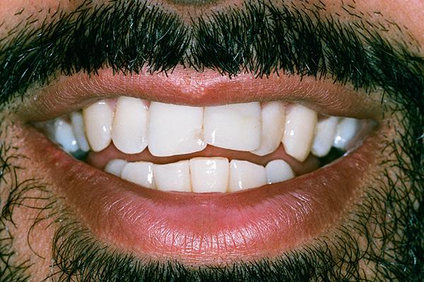 Before Invisalign - Finsbury Dental