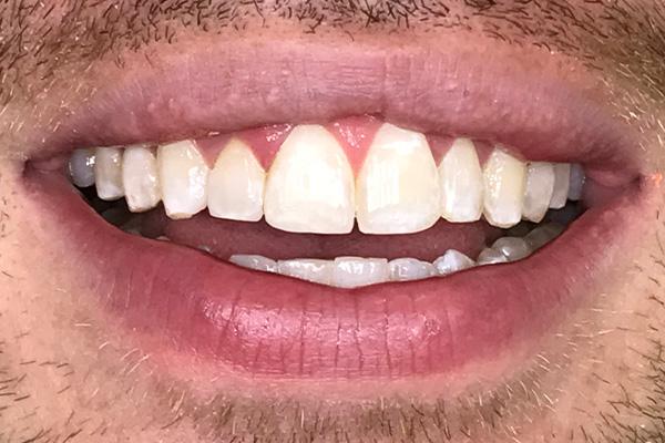 After Invisalign Treatment - Finsbury Dental