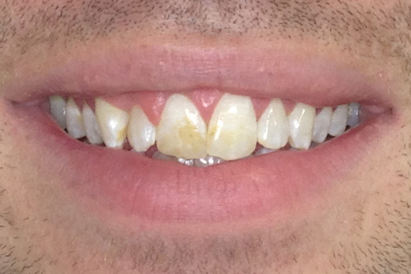 Before Our Invisalign Treatment - Finsbury Dental