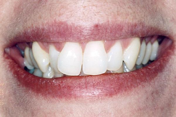 Before Invisalign Treatment - Finsbury Dental