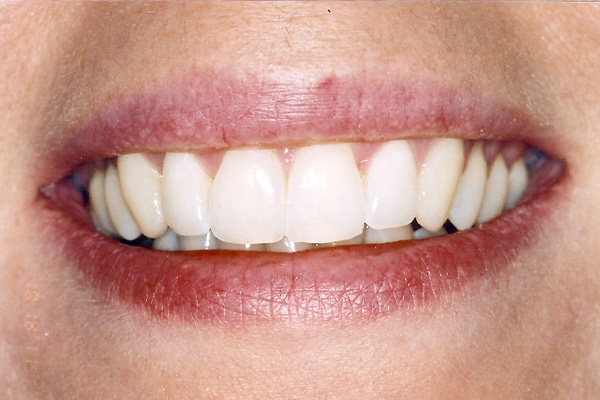 After Orthodontic Treatment - Finsbury Dental