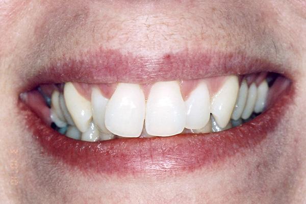 Before Orthodontic Treatment - Finsbury Dental