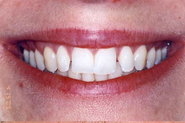 Orthodontic Treatments - Finsbury Dental