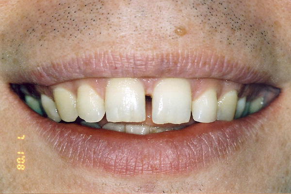 Orthodontic Treatments Before - Finsbury Dental