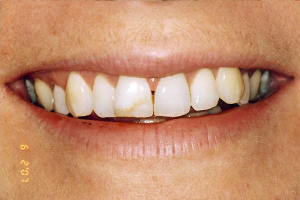 Before Veneers - Finsbury Dental Care