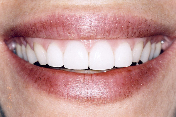 Our Veneers - Finsbury Dental Care