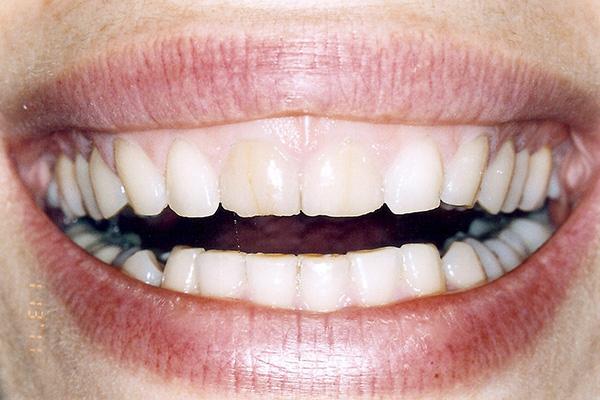 Before Our Veneers - Finsbury Dental Care