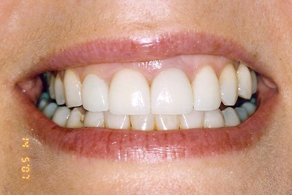 Post Veneer Treatment - Finsbury Dental Care