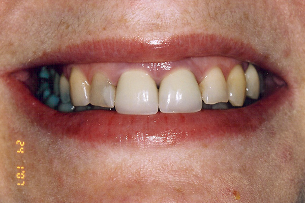 Pre Veneer Treatment - Finsbury Dental Care