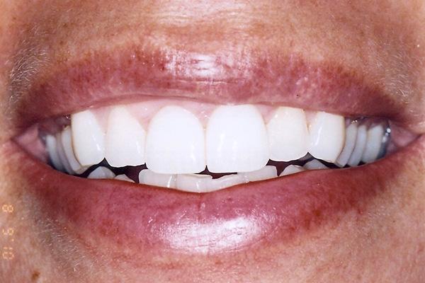 Veneer Procedure After - Finsbury Dental Care