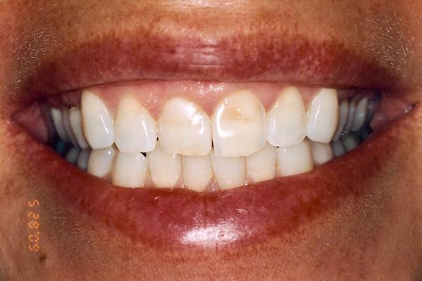 Veneer Procedures - Finsbury Dental Care