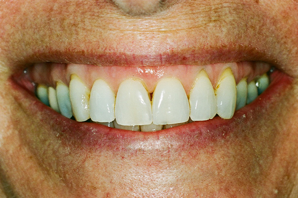 Pre Teeth Whitening Procedure - Finsbury Dental Care