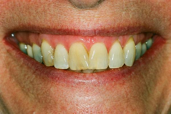 Before Teeth Whitening Procedure - Finsbury Dental Care