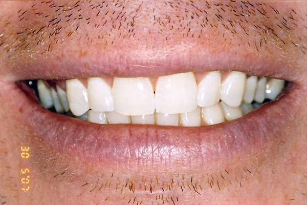 After Our Teeth Whitening - Finsbury Dental