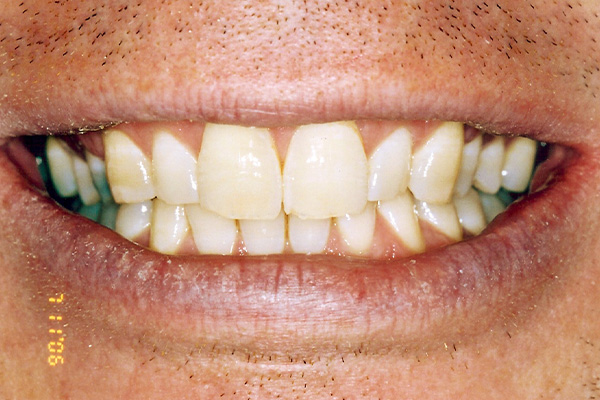 Before Our Teeth Whitening - Finsbury Dental