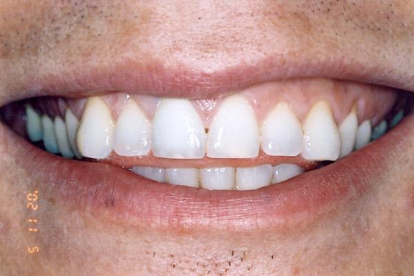 Teeth Whitening After - Finsbury Dental