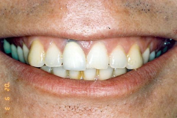 Teeth Whitening Before - Finsbury Dental